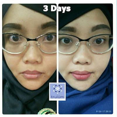 Jual Obat Penghilang Jerawat Trulum Skincare Dow Tolikara
