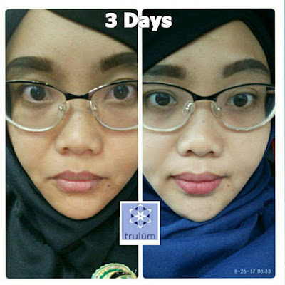 Jual Obat Penghilang Kantung Mata Trulum Skincare Way Kanan Lampung