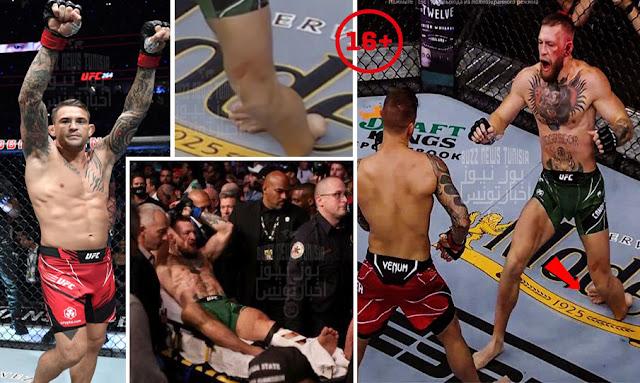 بث مباشر | مشاهدة نزال كونور ماكغريغور وداستن بورييه في UFC