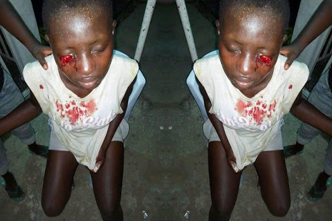Bayelsa SS1 Schoolgirl Stabs Classmate In Eye For Refusing To Join Cult