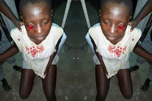 Ooh My!! See How A Bayelsa SS1 Schoolgirl Stabs Classmate In Eye For Refusing To Join Cult (Photos)