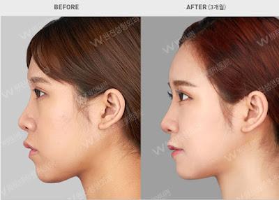 foto sebelum dan sesudah operasi plastik di korea 03
