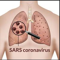 asuhan keperawatan SARS Nanda Nic Noc Terbaru