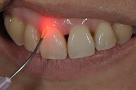 http://laserdentalclinicbangalore.com/What-are-the-Risk-Factors-for-Gum-Disease.php