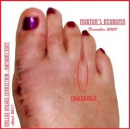 Julie Ann Brady Right Foot - Morton's Neuroma and Bunionectomy