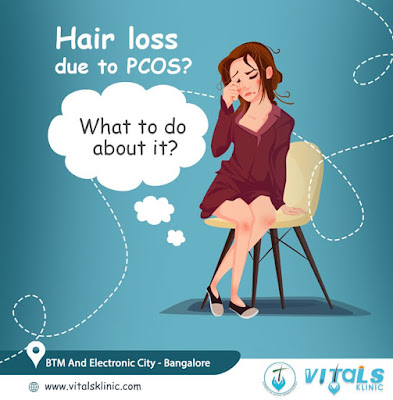 pcod hair loss treatment in bangalore