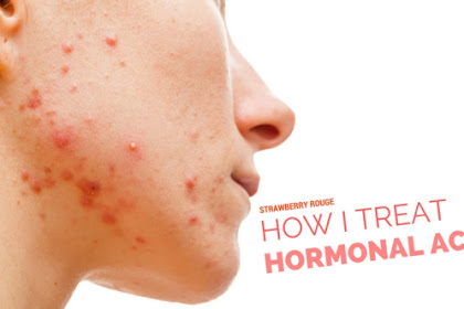 Hormonal Acne: Traditional Treatments, Natural Remedies, and More