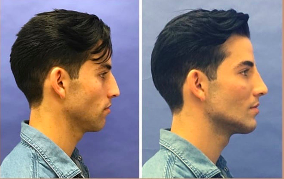 THE IMPORTANCE OF A STRONG JAWLINE - HOW TO ACHIEVE ONE