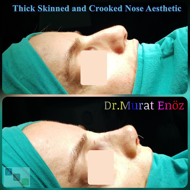 Crooked Nose Aesthetic,Female Nose Job, Rhinoplasty in Istanbul