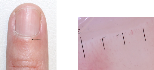 فحص تنظير طية الظفر Nailfold dermatoscopy بالعربي