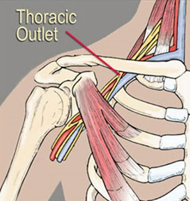 Thoracic Outlet Syndrome location