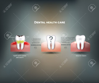 Complete Dental Care Tips
