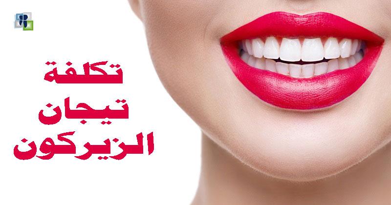 تيجان الزيركون للأسنان مزاياها وعيوبها وتكاليفها