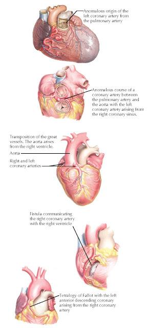 Congenital coronary artery anomalies.