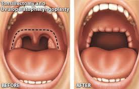 Going under a surgical procedure can at times a choice for CPAP struggling people. However, surgery is only carried out in severe instances and modifies a patient's tonsils, uvula, jaw, tongue, soft palate and it all depends on the root of this state.