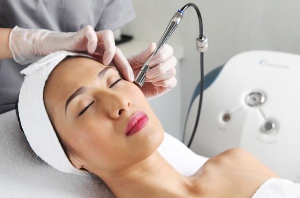 Laser vBeam là phương pháp điều trị cực kỳ hiệu quả cho tình trạng PIE