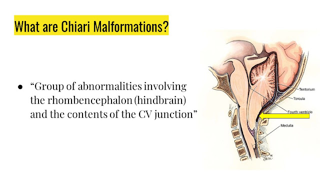 What are Chiari Malformations?