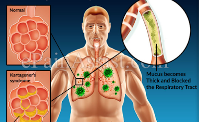Kartaneger syndrome