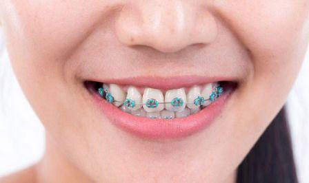 7 Cara Merawat Gigi Berbehel Yang Bisa Dilakukan di Rumah