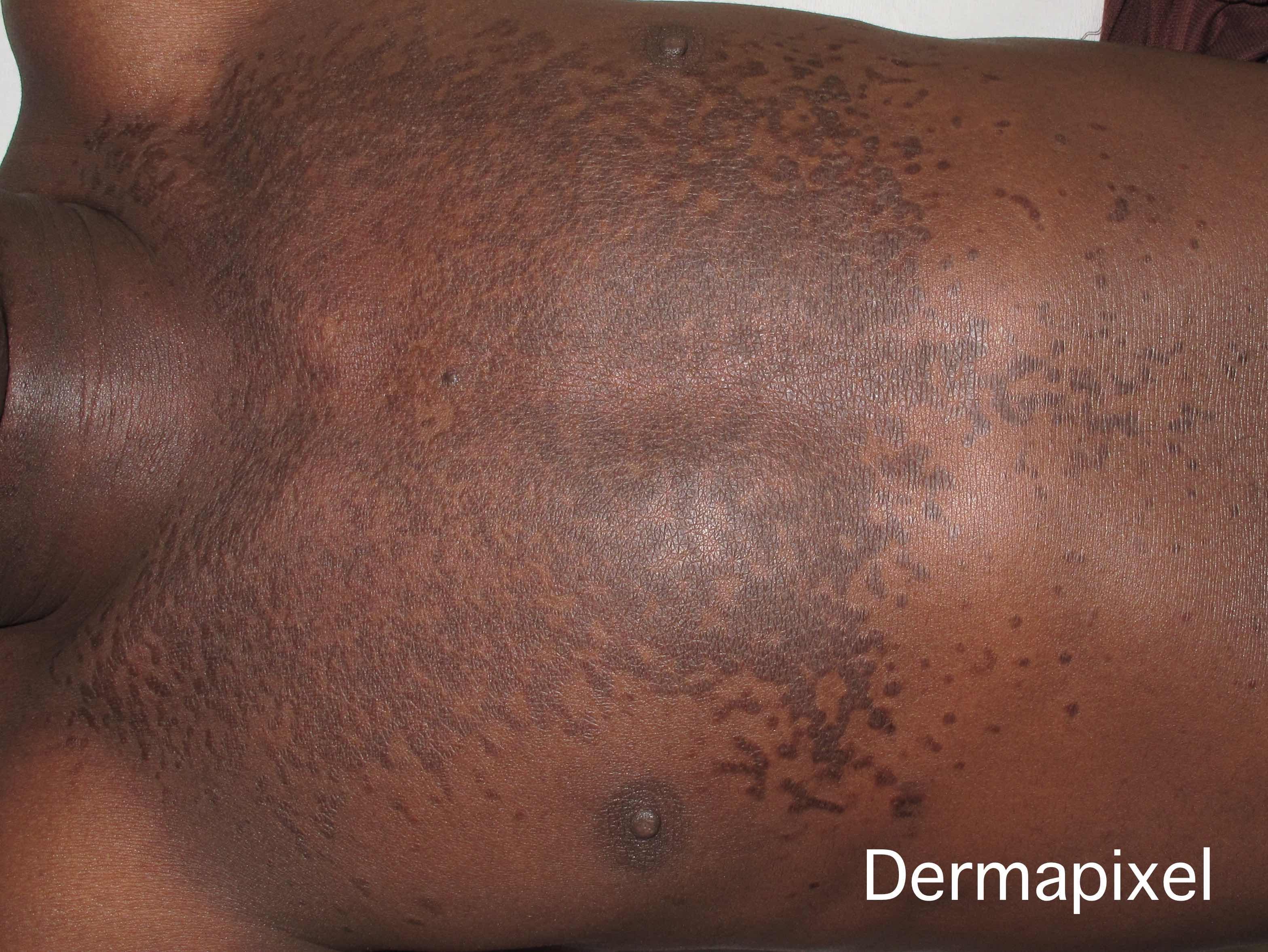 papilomatosis de piel)