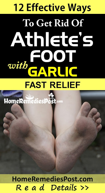garlic for athlete's foot, how to use garlic for athlete's foot, how to get rid of athlete's foot, home remedies for athlete's foot, athlete's foot treatment overnight fast, athlete's foot fungus treatment, athlete's foot relief, athlete's foot home remedies, how to treat athlete's foot, how to cure athlete's foot, athlete's foot remedies, remedies for athlete's foot, cure athlete's foot, treatment for athlete's foot, best athlete's foot treatment, how to get relief from athlete's foot, relief from athlete's foot, how to get rid of athlete's foot fast,