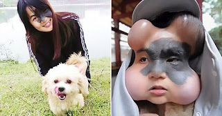 Woman has 4 balloons implanted in her face to save her life
