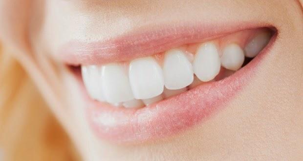 kuningan tentu saja mensugesti tingkat kepercayaan diri seseorang Tips Memutihan Gigi Anda Kurang Dari 5 Menit