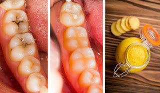Home Remedies To Get Rid Of Tooth Decay
