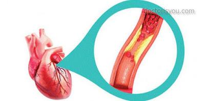 الدكتور هو أنت تأثير التدخين على القلب والشرايين الاضرار التي تحدث للقلب و الشرايين بسبب التدخين التعرض للنوبات القلبية معدل ضربات القلب وضغط الدم انخفاض الكوليسترول الجيد تدهور الشرايين انخفاض الكوليسترول الجيد وتدهور الشرايين نصائح صحية الوقاية من امراض القلب و الشرايين بالأعشاب الكوليسترول السيئ LDL الكوليسترول الجيد HDL الاوميغا 3  Omega 3