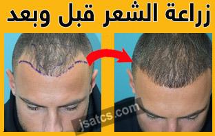 زراعة الشعر في الرياض ادمه