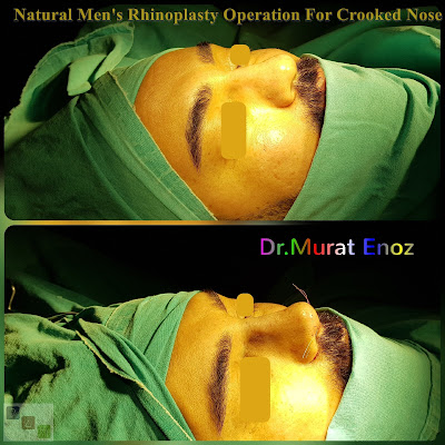 Natural Men's Rhinoplasty Operation For Crooked Nose - Nose Job For Men Istanbul