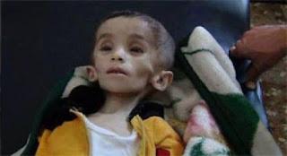 Kekejaman Syiah Nushairiyah; 400.000 Penduduk Suriah Terancam Kelaparan di Madaya yang Terkepung