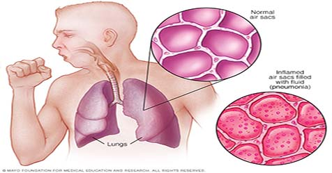 Pneumonia Symptoms Causes and Treatment