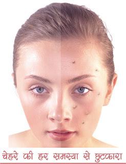 स्किन की देखभाल में लापरवाही बिल्कुल नहीं in hindi, No carelessness in skin care in hindi, रोम छिद्र भरने का शुद्ध घरेलू उपचार in hindi, Pure home remedies for hair follicles in hindi, स्किन पोर्स या रोम छिद्र का इलाज in hindi, Treatment of skin pores or hair follicles in hindi, अब चेहरे के रोम छिद्र हमेशा के बंद   in hindi, Now the facial follicles stop perforation forever in hindi, chehre ke rom chidra kaise band kare in hindi, chehre ke rom chidra se chutkara in hindi, चेहरे के रोम छिद्रों से छुटकारा hindi,Get rid of facial pores in hindi, chehre ke rom chidra kaise door karein hindi, chehre ke rom chidra ko bandh karein in hindi, chehre ke rom chidra ke barein mein hindi, chehre ke rom chidra ki samasya in hindi,how to remove small pores from face naturally in hindi, chehre ke rom chidra kaise band kare in hindi, face ke open pores kaise band kare in hindi, open pores on face home remedy in hindi, chehre ke rom chidra ko band karne ke upay in hindi, open pores kyu hote hai in hindi, how to close open pores on face permanently in hindi, open pores treatment at home in hindi, how to close open pores on face permanently naturally in hindi, Top  Home Remedies to Cure Open Pores on Face & Skin in hindi, how to reduce pores on face caused by pimples in hindi, how to get rid of open pores on face ayurvedic medicine for open pores in hindi, chehre ke rom chidra kaise hataye in hindi, rom chidra mitane ke upay in hindi, rom chidra kya hai in hindi,  , sakshambano ka matlab in hindi सक्षम hindi, sakshambano in hindi, sakshambano in eglish, sakshambano meaning in hindi, sakshambano in hindi, sakshambano ka matlab in hindi, sakshambano photo, sakshambano photo in hindi, sakshambano image in hindi, sakshambano image, sakshambano jpeg, sakshambano site in hindi, sakshambano wibsite in hindi, sakshambano website, sakshambano india in hindi, sakshambano desh in hindi, sakshambano ka mission hin hindi, sakshambano ka lakshya kya hai,  sakshambano ki pahchan in hindi,  sakshamban
