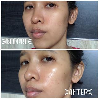 Tips skincare, skincare kulit berminyak