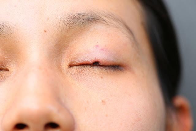 Perte de cils due au cancer de la peau