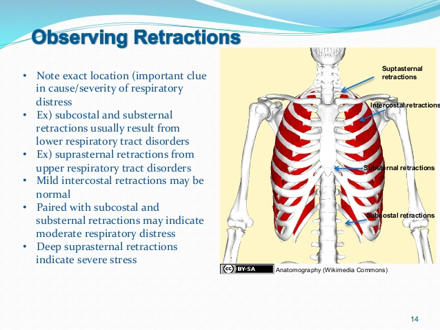 respiratory retractions in adults