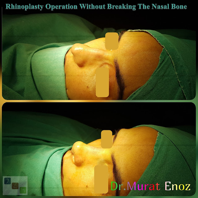 Rhinoplasty Without Breaking The Bone, Nose Job Without Bone Broken in Istanbul, Tip plasty, Micromotor Assisted Male Rhinoplasty Without Breaking The Bone,