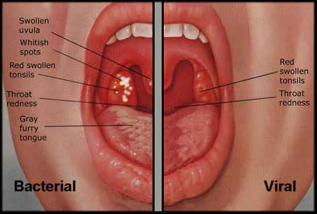 Image result for Pictures of TONSILLITIS