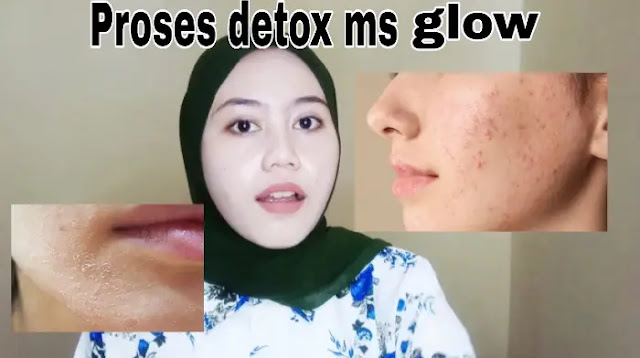 Proses Detoks Ms Glow Acne
