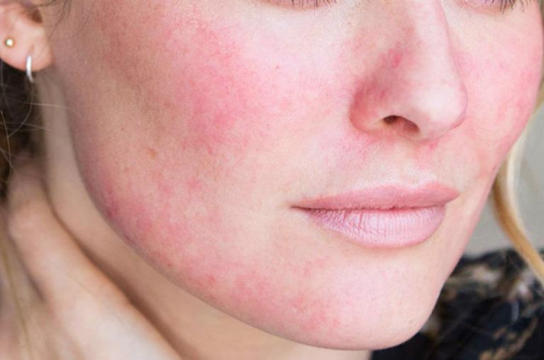 Thâm đỏ do ánh nắng mặt trời có thể làm khởi phát mụn trứng cá và các vấn đề về da
