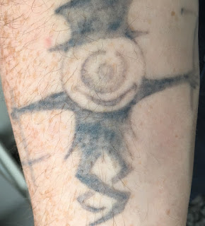 Tattoo after one year, 4 q-switched and 2 picosure sessions