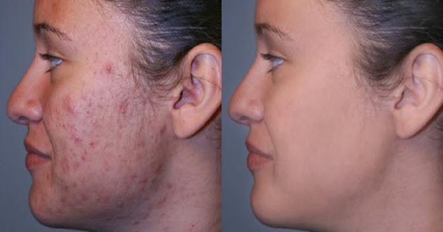 15 Remèdes à la maison pour l'élimination des cicatrices