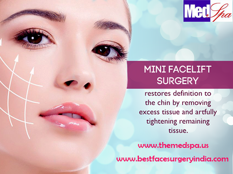 min facelift surgery by dr ajaya kashyap