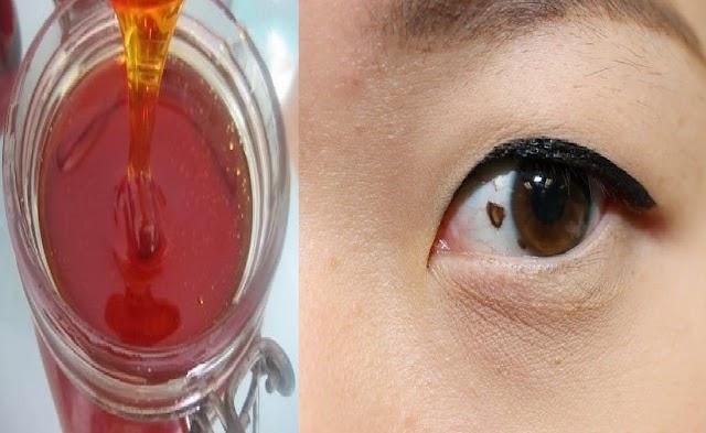العلاج النهائي لظفرة العين ... بالعسل !!