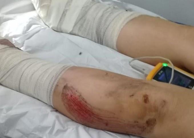 Caminhoneiro dá marcha à ré e atropela mulher que falava ao celular em Ourolândia