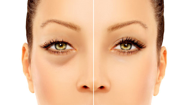 remedios caseros para las bolsas debajo de los ojos
