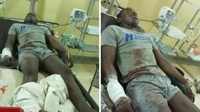 Again SARS Shoots Innocent Man During Lockdown In Abuja