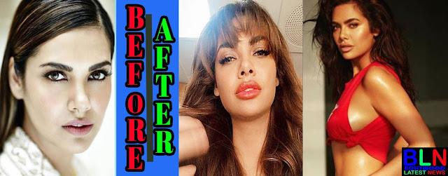 ESHA GUPTA Bollywood Actresses Before and After Plastic Surgery