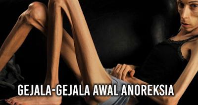 Penyebab Anoreksia